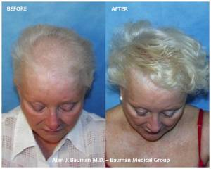 Female Hair Transplant Results