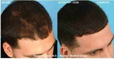 36 y/o Male PRP w/ECM Hair Regrowth Results