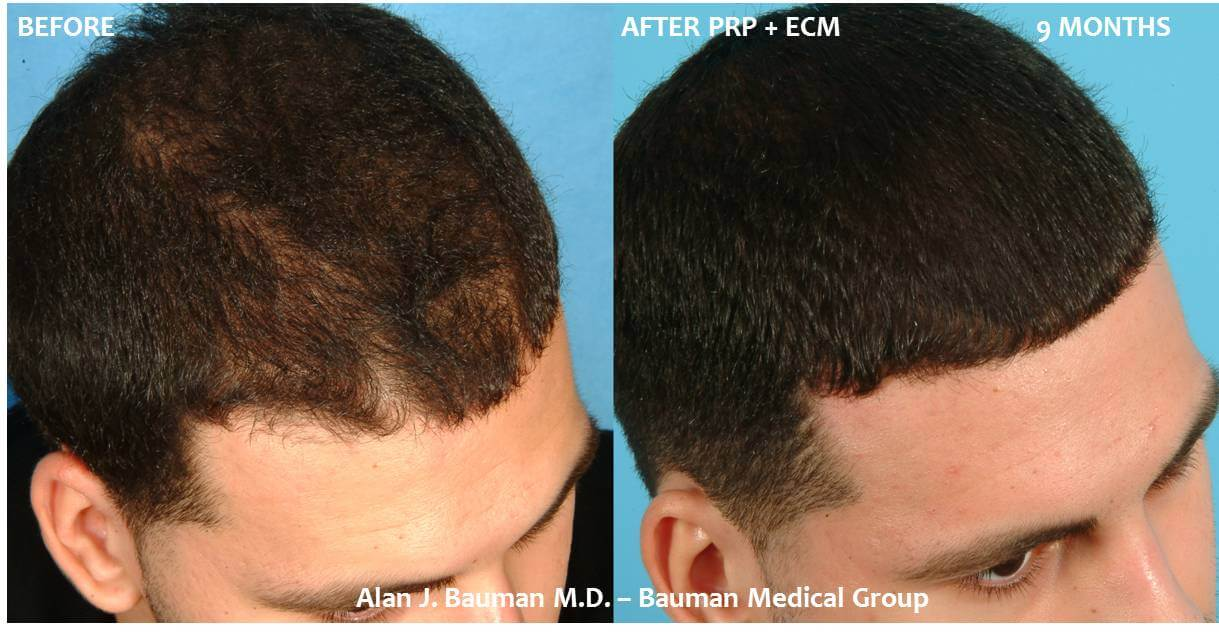 Hair transplant in delhi cost