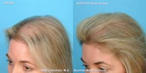 38 y/o Female PRP Hair Regrowth Treatment Results