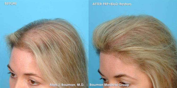 38 Year Old Female Prp Hair Regrowth Bauman Medical Group