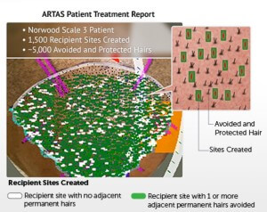 Artas Recipient Site Creation Avoids Healthy Hair 300x238 ARTAS Robotic FUE Hair Transplant