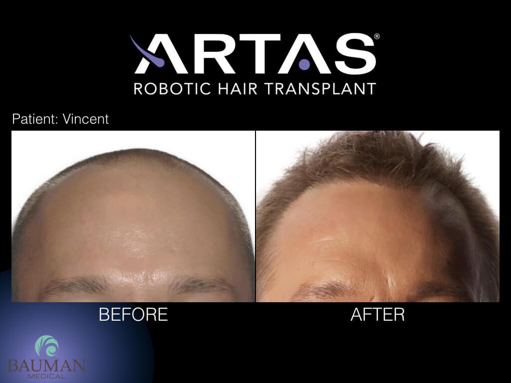 ARTAS Robotic FUE Hair Transplant