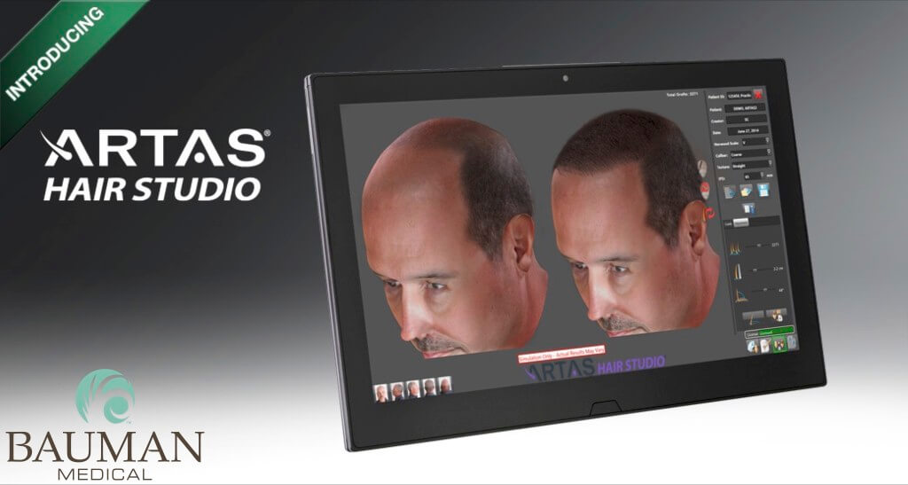 artas hair studio 3d preview dralanbauman 1024x547 ARTAS Robotic FUE Hair Transplant