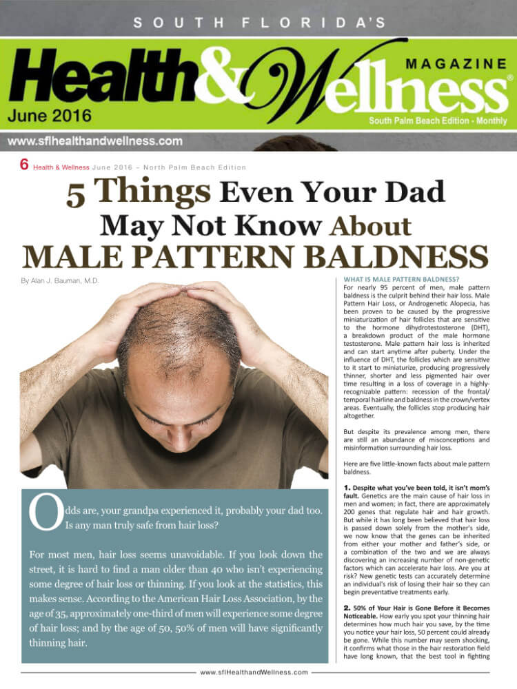 5 Things Even Your Dad Didn't Know About Male Pattern Baldness