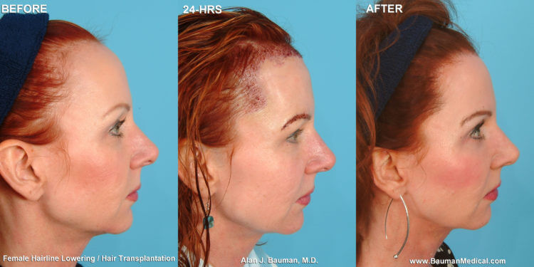 What is non-surgical hairline advancement?
