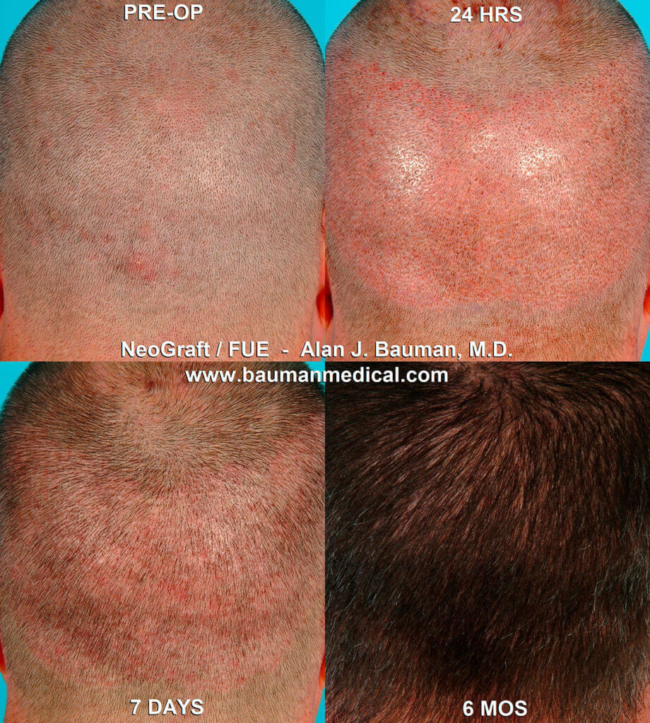 Bauman transplant 8 920x1024 Hair Transplant Recovery    Post Op Issues
