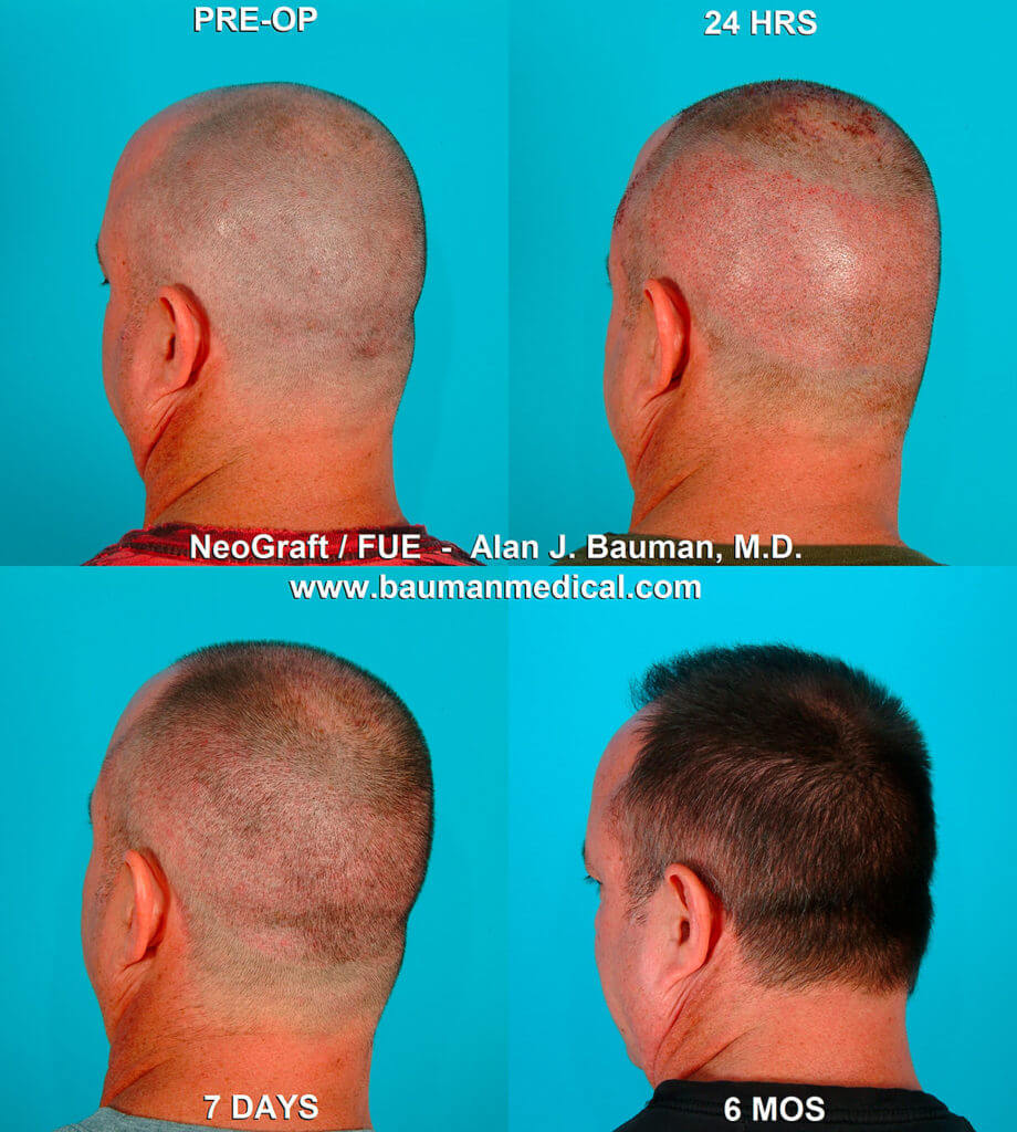 Bauman transplant 9 920x1024 Hair Transplant Recovery    Post Op Issues