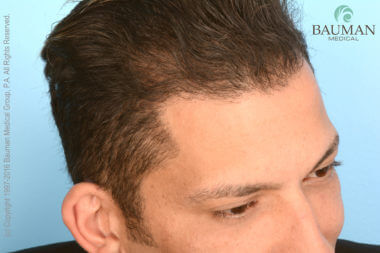 ARTICLE: An Undetectable Hair Transplant