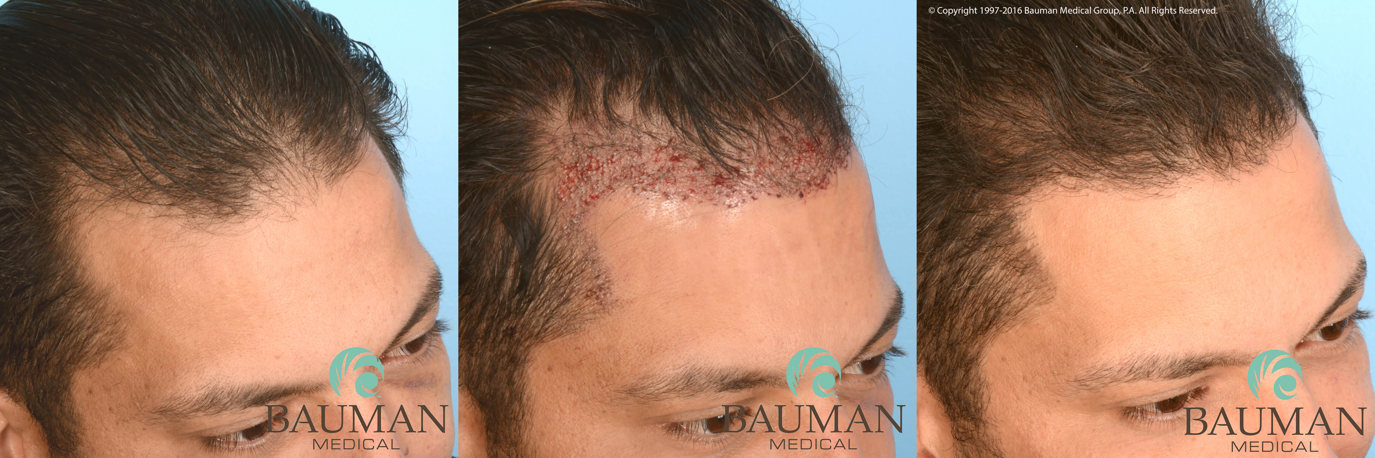 Cartier Martino before 24h 1yrpostop results hairline ARTICLE: An Undetectable Hair Transplant