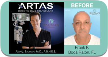 You're invited to watch Dr. Alan J. Bauman at work with ARTAS to recreate and restore Frank's youthful head of hair!