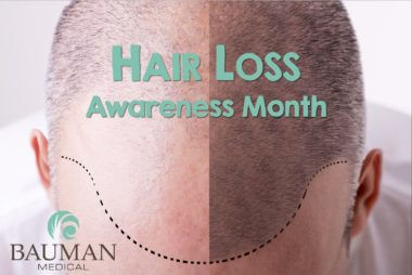 Press Release: National Hair Loss Awareness Month: 10 Best Treatments for Men and Women