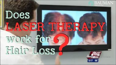 Does LaserCap Work for Hair Loss?