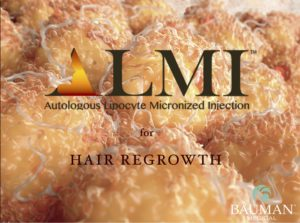 ALMI HairRegrowth 300x223 ALMI Autologous Lipocyte Micronized Injection for Hair Regrowth [NanoFat]