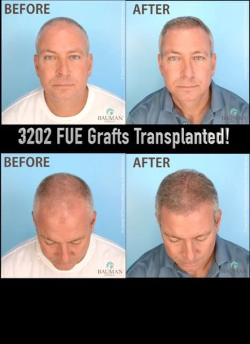 VIDEO: Patient Darrin's Review of ARTAS FUE Hair Transplant with Dr. Alan Bauman