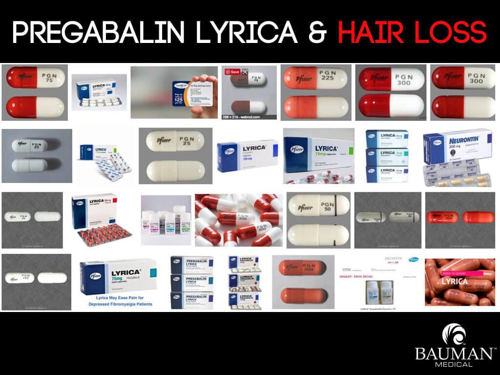 Do Gabapentin Neurontin and Pregabalin Lyrica Cause Hair Loss?
