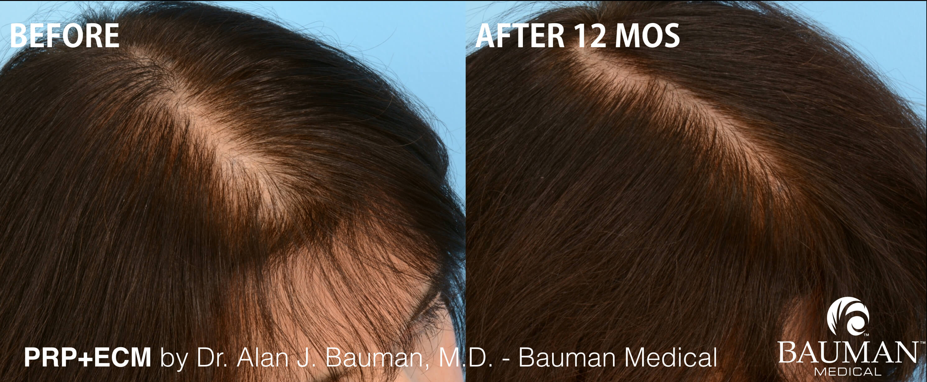 Prp Hair Regrowth Results In Female Patient