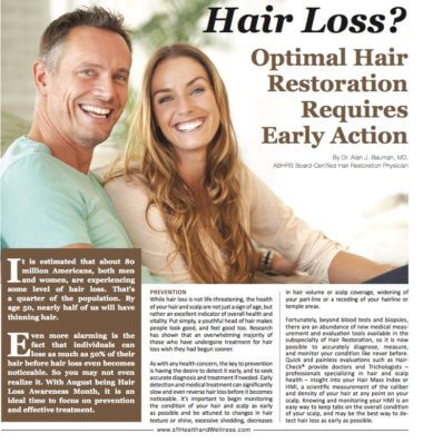 ARTICLE: Hair Loss? Optimal Restoration Requires Early Action