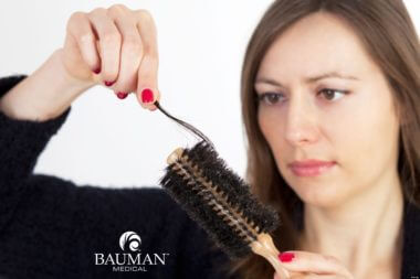 Q: What Can Be Done About Hair Shedding?