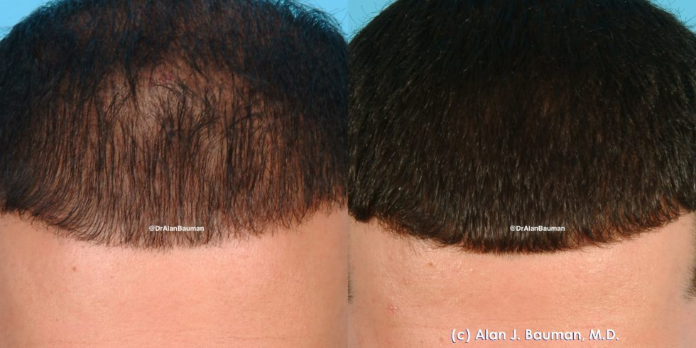 Bauman Male PRP 002 980x490 Vampire PRP Treatment for Hair Loss