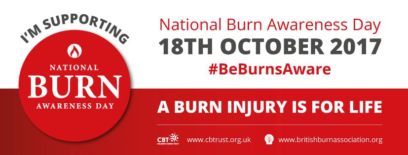 NBAD Burn Awareness Day Videos: Scalp Burn Hair Replacement with CNC Hair Prosthesis #BeBurnsAware