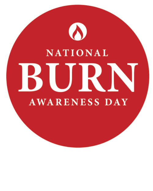 Burn Awareness Day Videos: Scalp Burn Hair Replacement with CNC Hair Prosthesis #BeBurnsAware