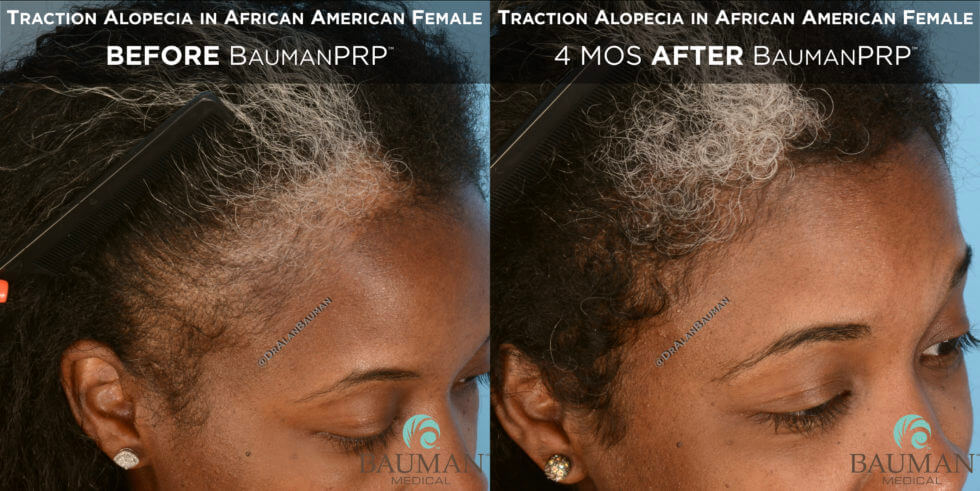 Traction Alopecia in African American BaumanPRP