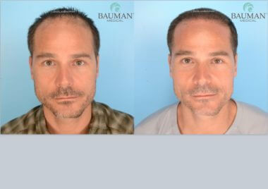 SmartGraft FUE Hair Transplant Results from Dr. Alan Bauman
