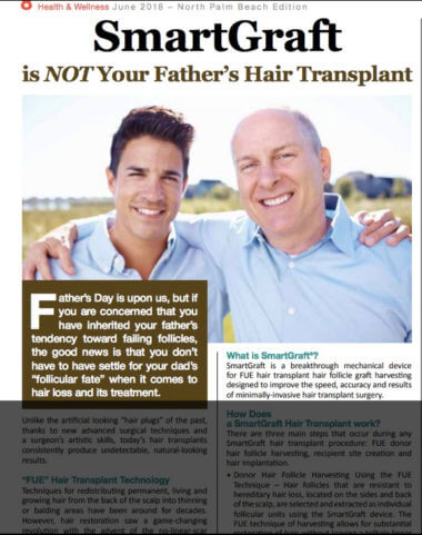 ARTICLE: SmartGraft is NOT your Father's Hair Transplant