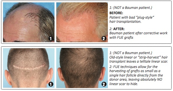 Screen Shot 2018 07 03 at 8.08.25 AM ARTICLE: Hair Transplant DOs and DONTs