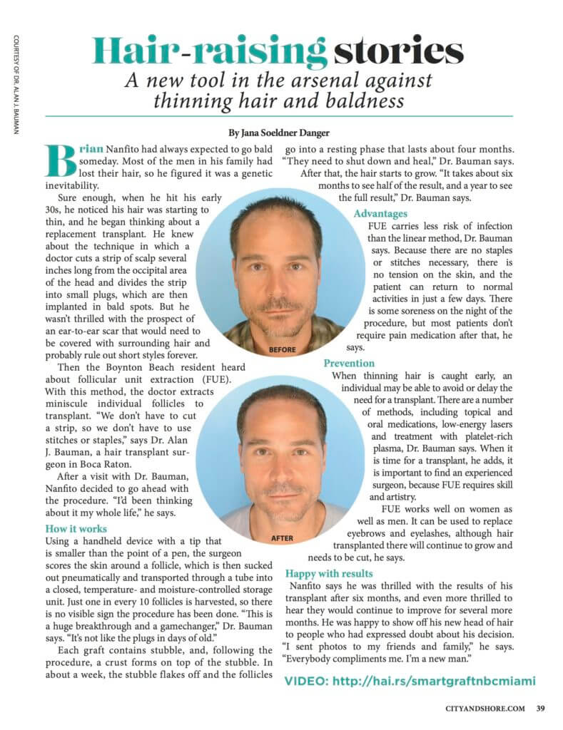 SmartGraft FUE Prime DrAlanBauman3 789x1024 NEWS: SmartGraft, a new tool against thinning, baldness