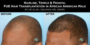 Before After: African Afro Caribbean Ethnic FUE Hair Transplant using SmartGraft