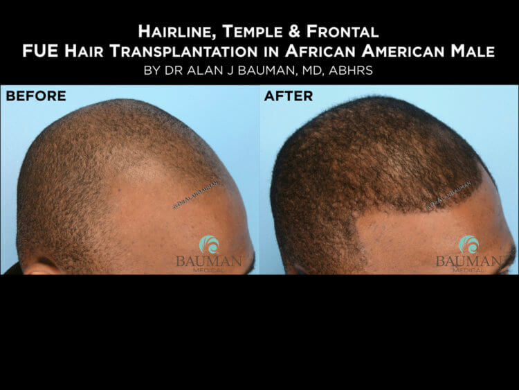 Before-After: African Afro Caribbean Ethnic FUE Hair Transplant using SmartGraft