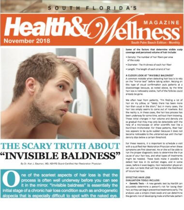 ARTICLE: The Scary Truth About Invisible Baldness