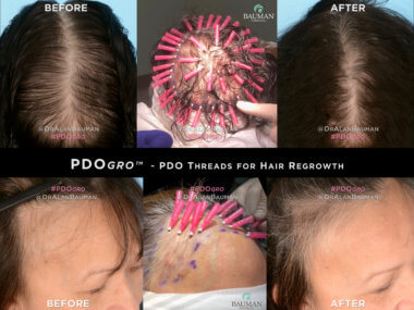 PRESS RELEASE: DR. ALAN J. BAUMAN FIRST IN USA TO USE PDOgro™ PDO THREAD PROCEDURE FOR HAIR REGROWTH