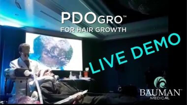 VIDEO: PDOgro PDO Thread Procedure for Hair Growth Demo