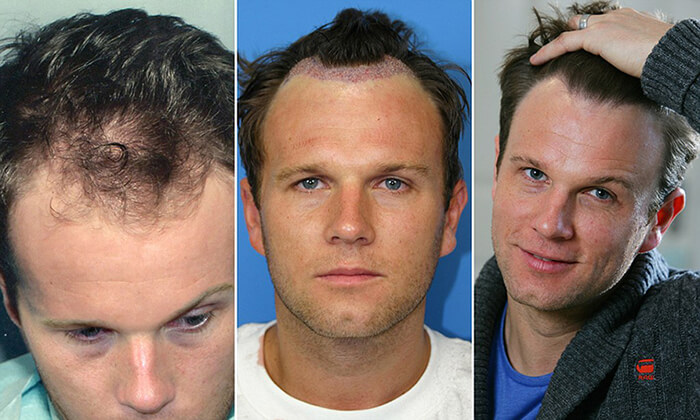 spencer stevenson hair loss trauma Who is Hair Loss Mentor Spencer SPEX Stevenson?