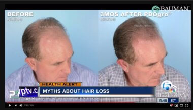 VIDEO: Hair Loss Myths + PDOgro on NBC Palm Beach Hair Loss Awareness Month