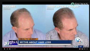 VIDEO: Hair Loss Myths + PDOgro on NBC Palm Beach Hair Loss Awareness Month
