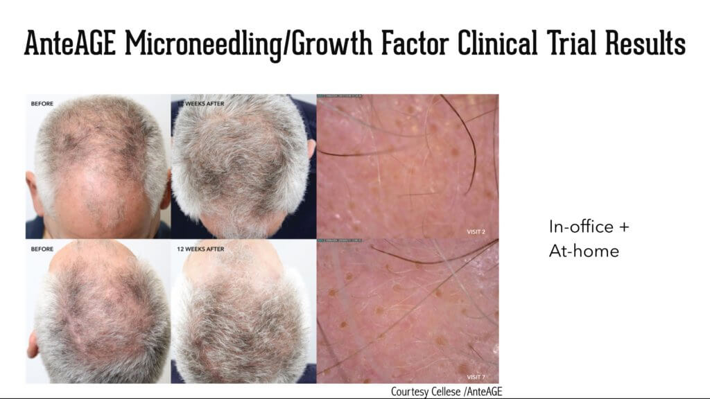 Screen Shot 2020 02 27 at 5.08.32 PM 1024x576 Stem Cell Derived Growth Factors Cytokines AnteAGE for Hair Growth
