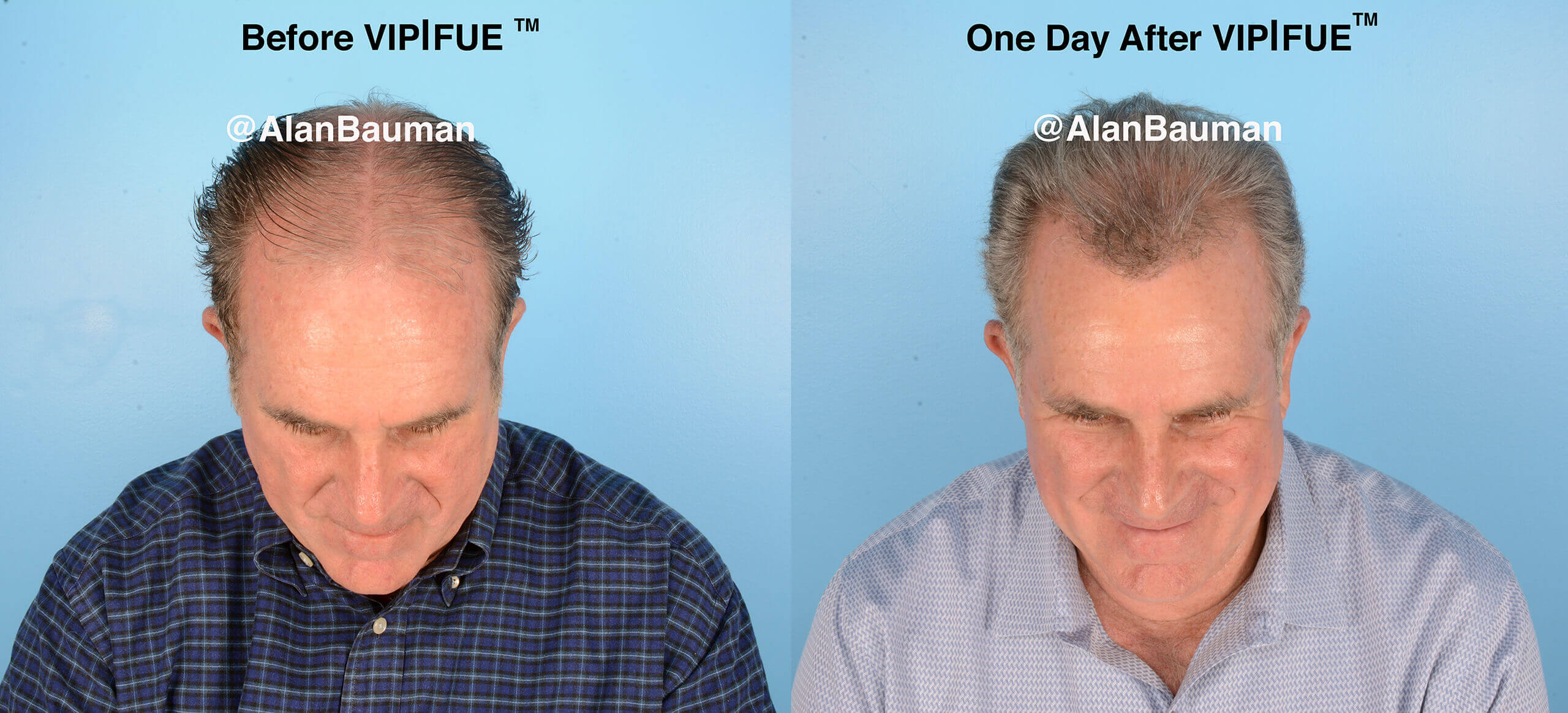 vip fue before after VIP|FUE™ No Shave Long Hair Preview Hair Transplant