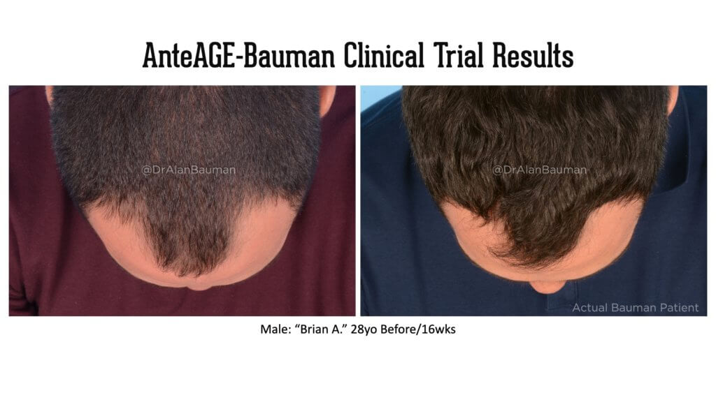 Bauman AnteAGE Clincal Trial results 28M top 1024x576 VirtualPRP AnteAGE MD Clinical Trial Before+After Results