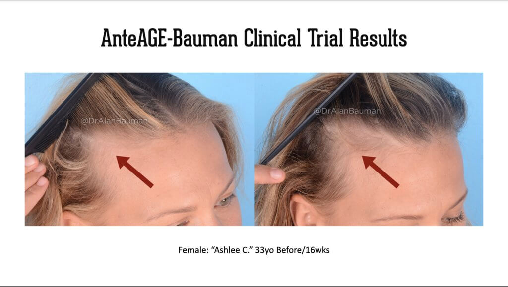 Bauman AnteAGE Clinical Trial results 33F temples 1 1024x579 VirtualPRP AnteAGE MD Clinical Trial Before+After Results