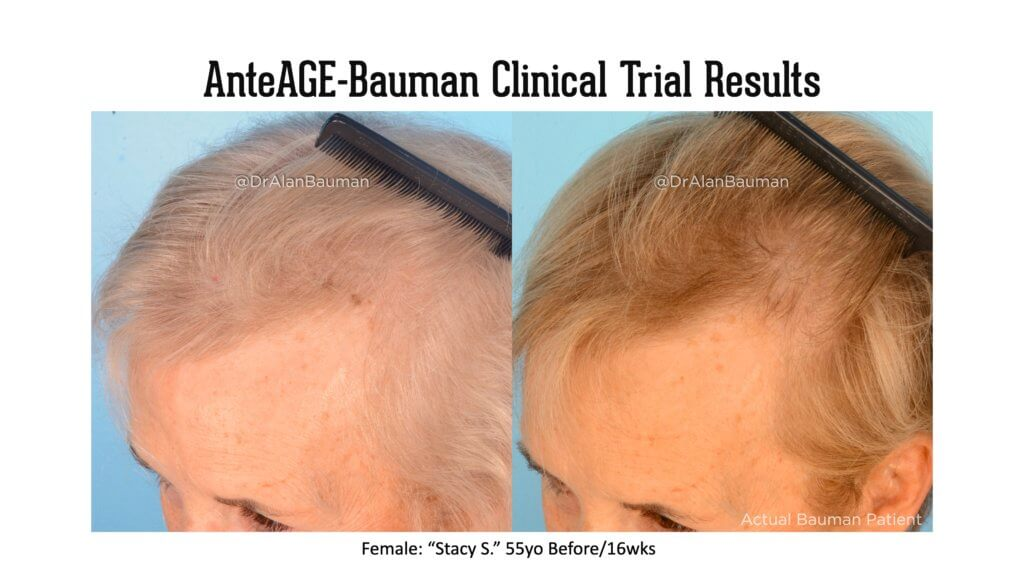 Bauman AnteAGE Clinical Trial results 55F temples 1024x576 VirtualPRP AnteAGE MD Clinical Trial Before+After Results