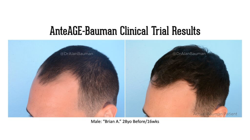 Bauman AnteAGE Clinical Trial results 28M temples 1024x576 VirtualPRP AnteAGE MD Clinical Trial Before+After Results