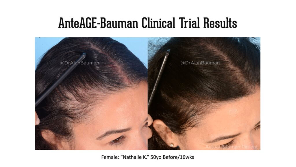 Bauman AnteAge Clinical trial results 50F temples 1024x577 VirtualPRP AnteAGE MD Clinical Trial Before+After Results