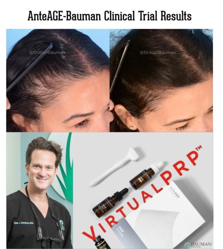 VirtualPRP AnteAGE-MD Clinical Trial Before+After Results