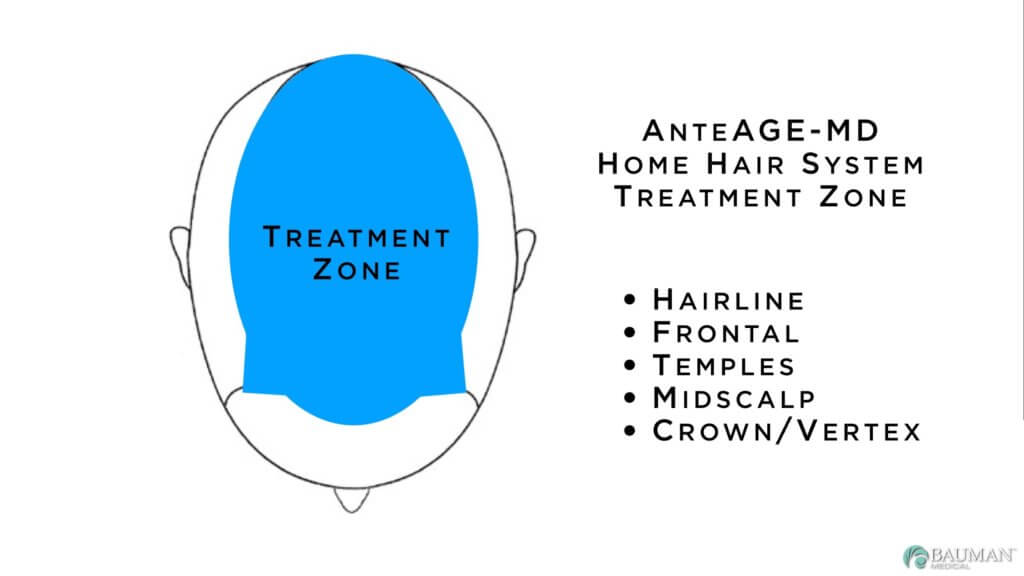VirtualPRP AnteAGE MD Treatment Zone 1024x576 What is VirtualPRP and AnteAge MD Home Hair System?