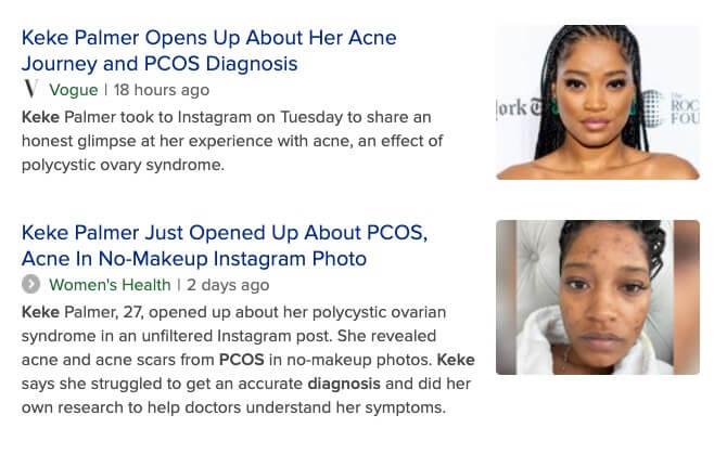KEKE PCOS acne hair loss dralanbauman How to Avoid and Treat PCOS Hair Loss