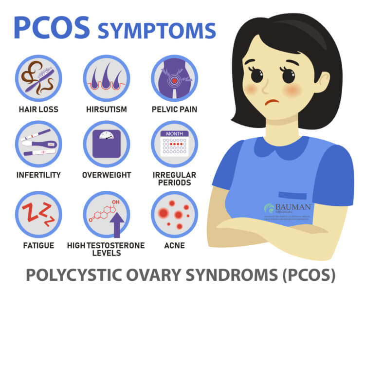 How to Avoid and Treat PCOS Hair Loss